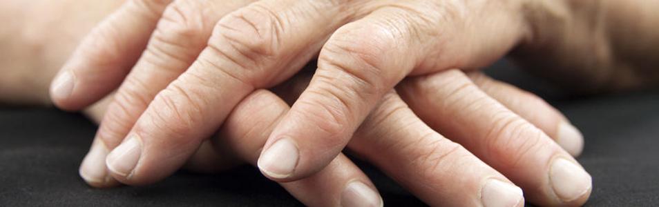 An Herbal Approach To Rheumatoid Arthritis